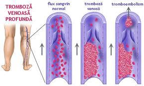 Tromoboza venoasă profundă